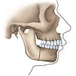 Correcting a Receding Lower Jaw