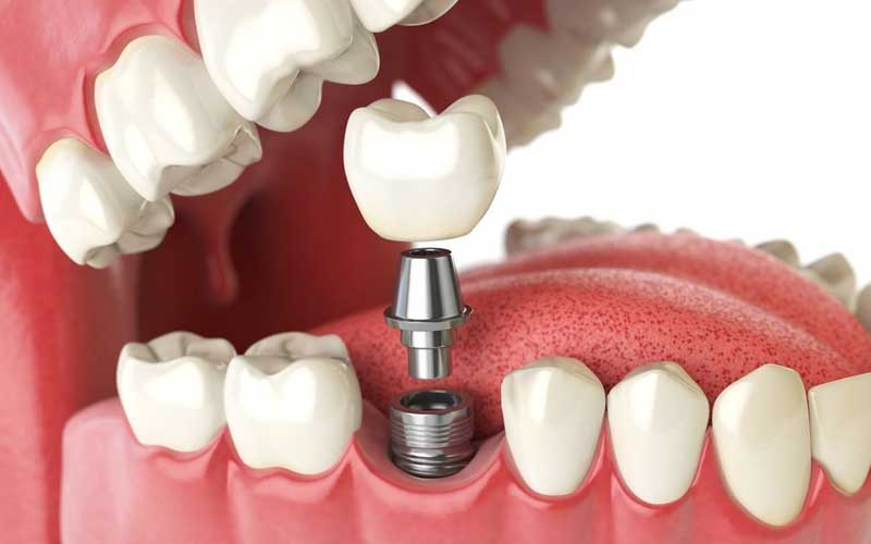 dental implant and restoration