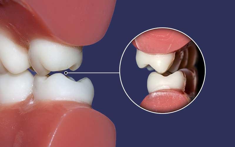 Dental Occlusion Billings Mt Kenneth J Bagby D D S P C