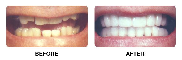 before and after case 4