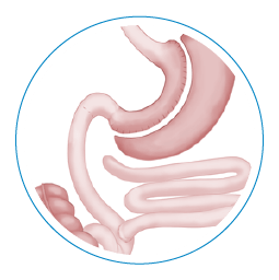 Intestines that are adjusted during duodenal switch surgery.