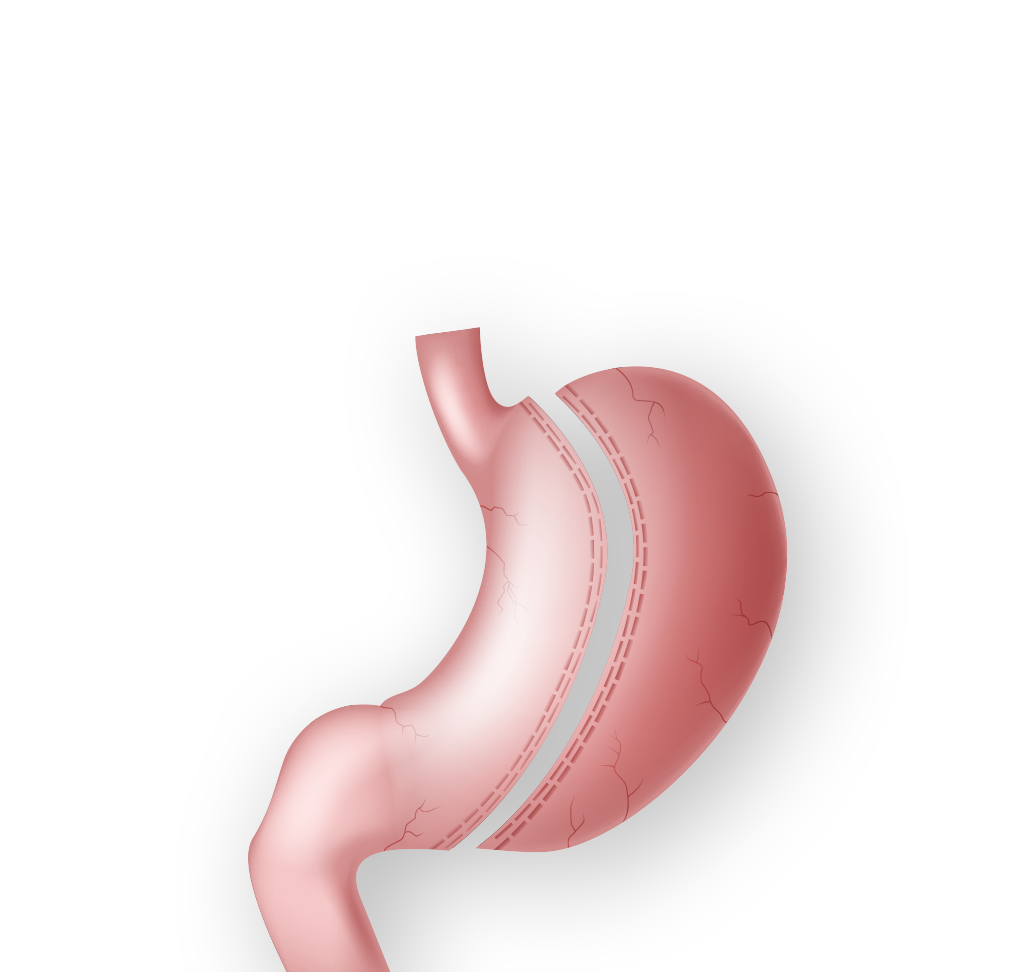 Demonstration of gastric sleeve surgery