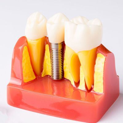Model of implant-supported crown in jaw