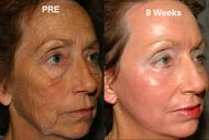 before and after laser skin treatment