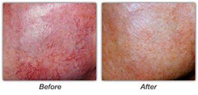 Face Vein Treatment