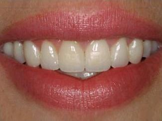 Smile After Treatment