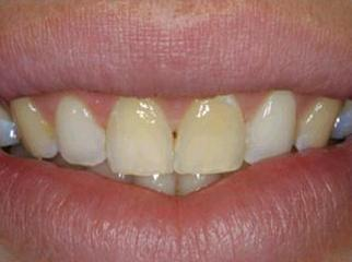 Smile Before Treatment