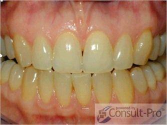 Patient smile before treatment
