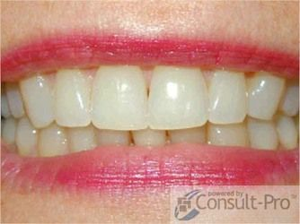 Patient smile after treatment