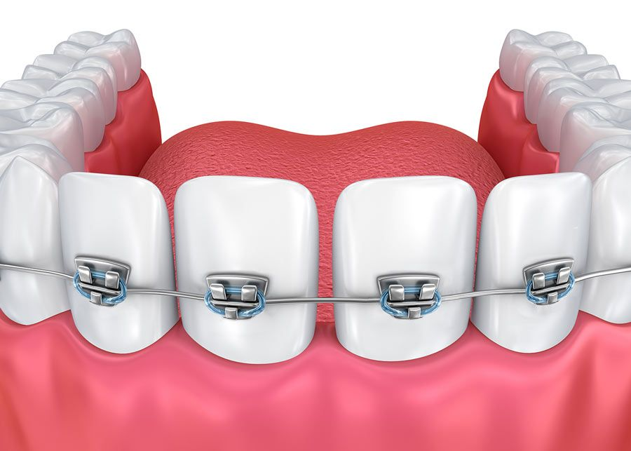 Illustration of braces on teeth