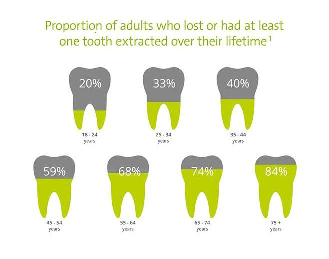 Tooth extraction statistics