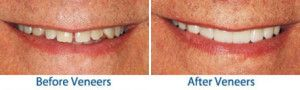 A patient's smile before and after porcelain veneers