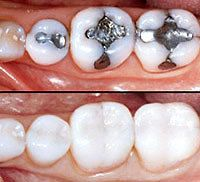 Top: Teeth with silver fillings; Bottom: Teeth with composite fillings