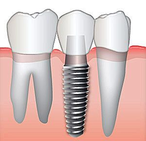 Cartoon of a dental implant with natural teeth on either side