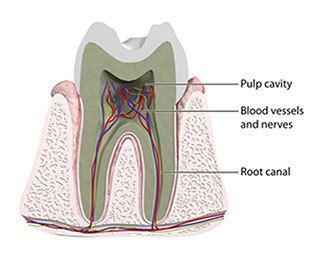 Diagram of the inside of a tooth, including the root canal, blood vessels, and pulp cavity