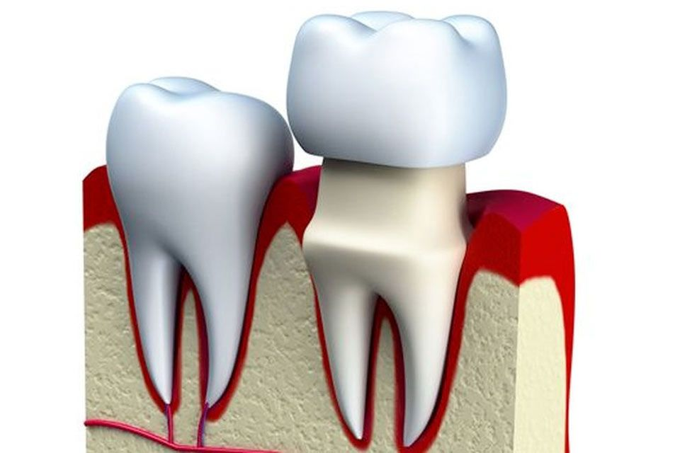 Demonstration of how a crown fits over an existing tooth.