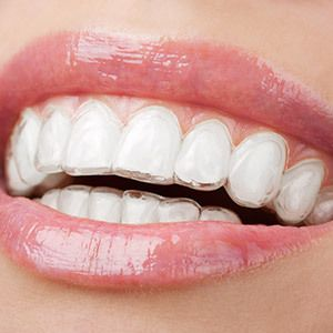 A close-up of a smile with an Invisalign clear aligner