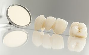 Dental crown and bridge on table top