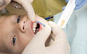 Young child in dental chair receives fluoride treatment