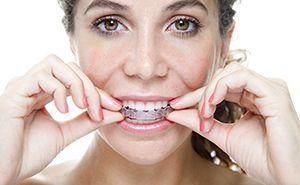 Woman placing Invisalign tray on teeth