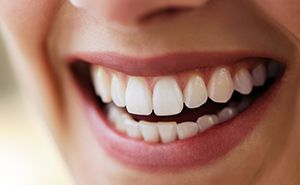 Closeup of flawless smile following soft tissue laser therapy
