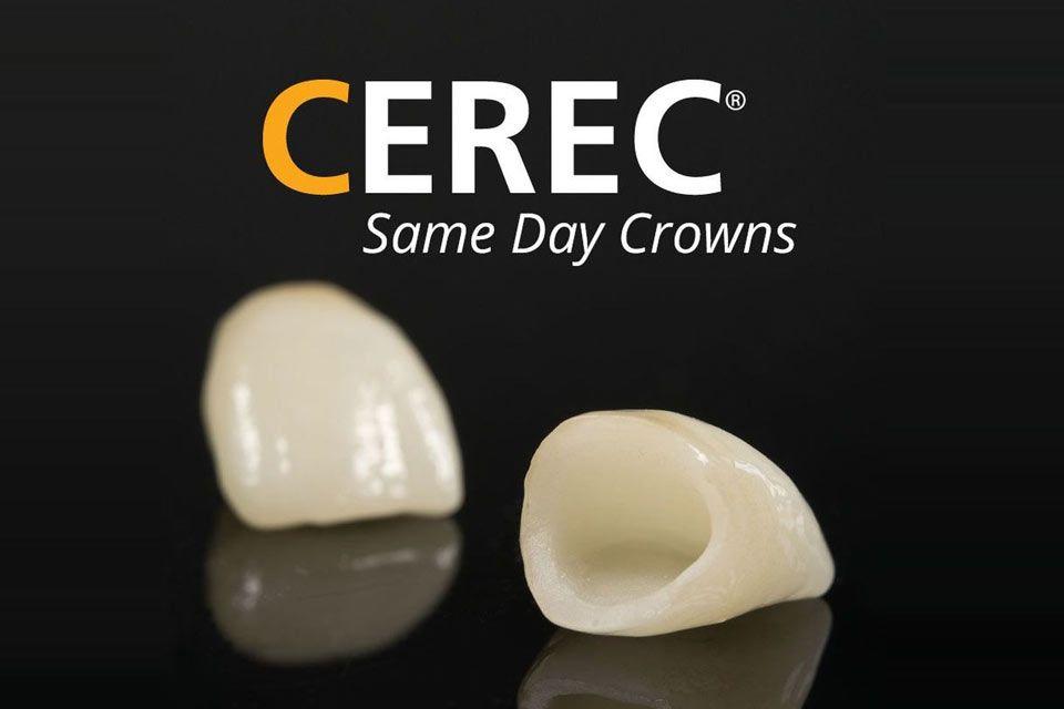 CEREC same-day crowns