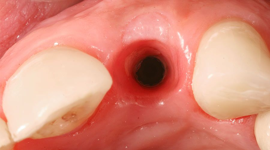 tooth socket