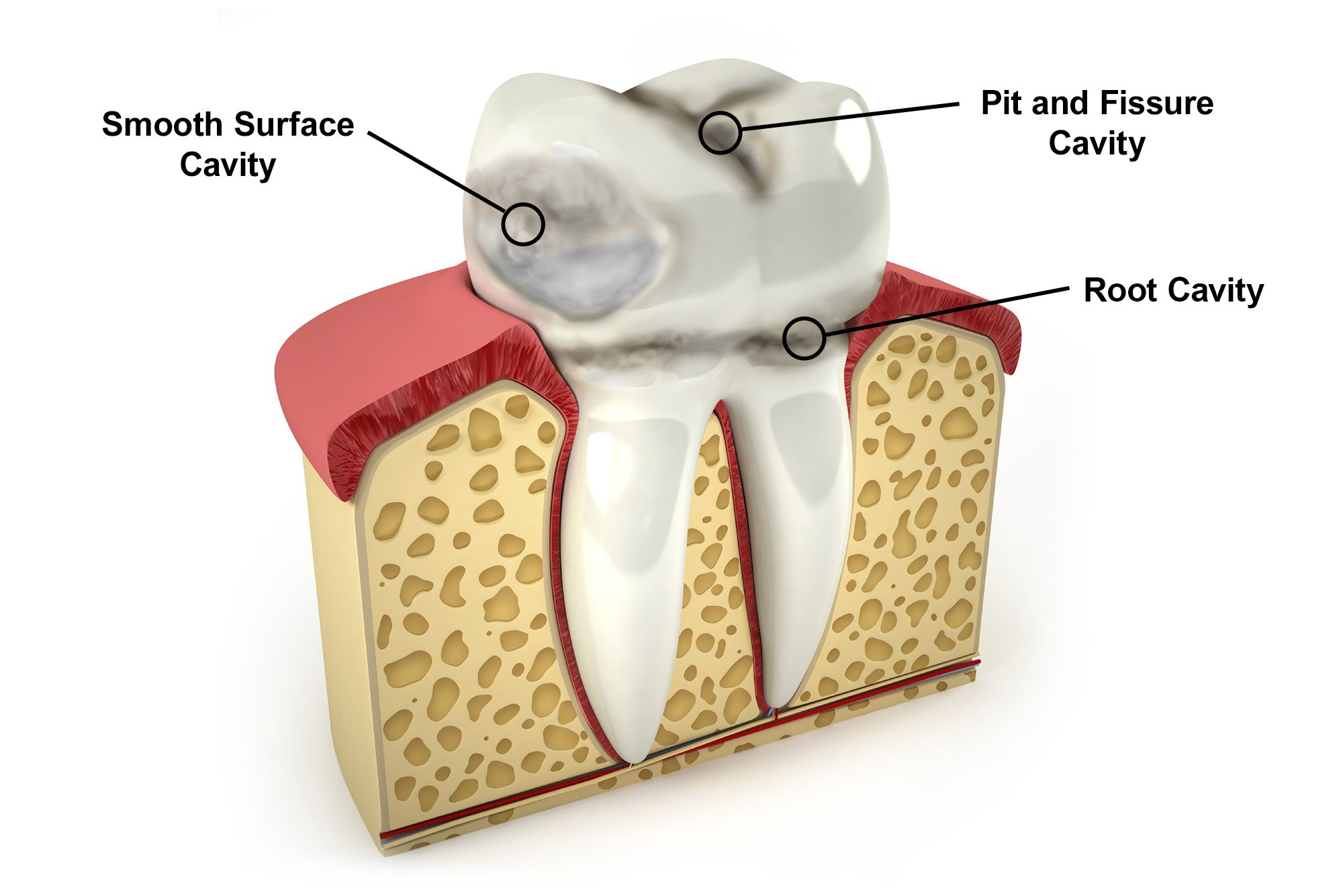 Types of Cavities