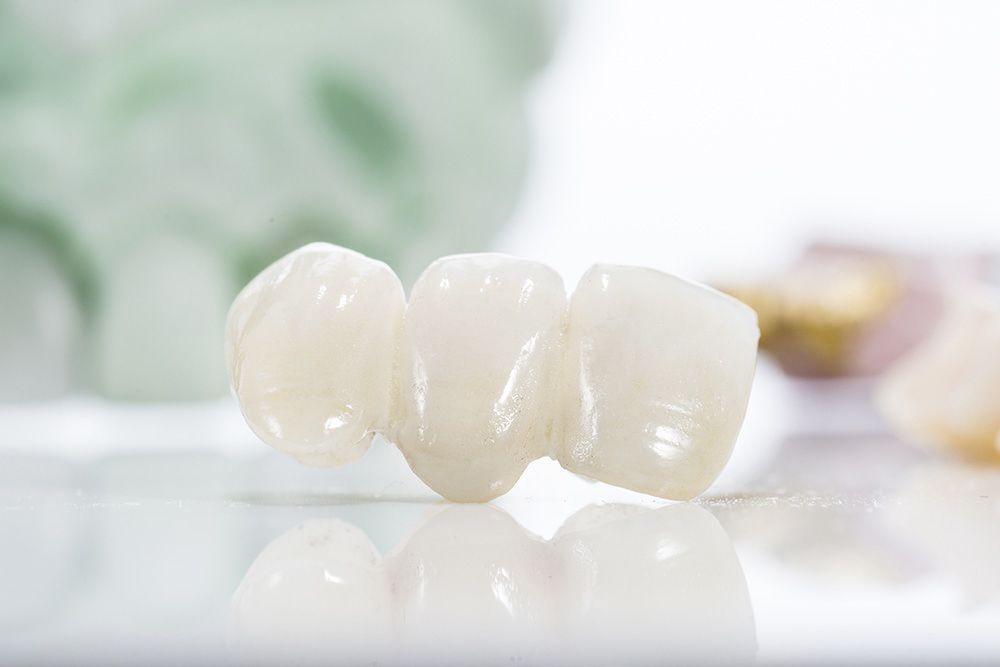 A porcelain dental bridge