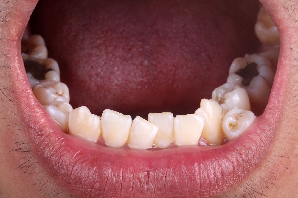 Close up of man's crowded teeth