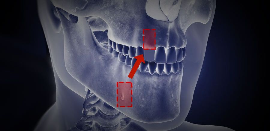 Dotted lines on jaw showing recipient and donor areas for bone grafting