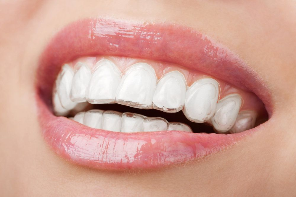 female patient wearing Invisalign clear aligners