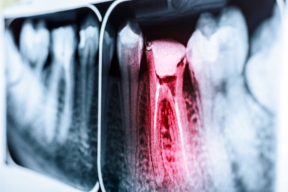x-ray of tooth after root canal