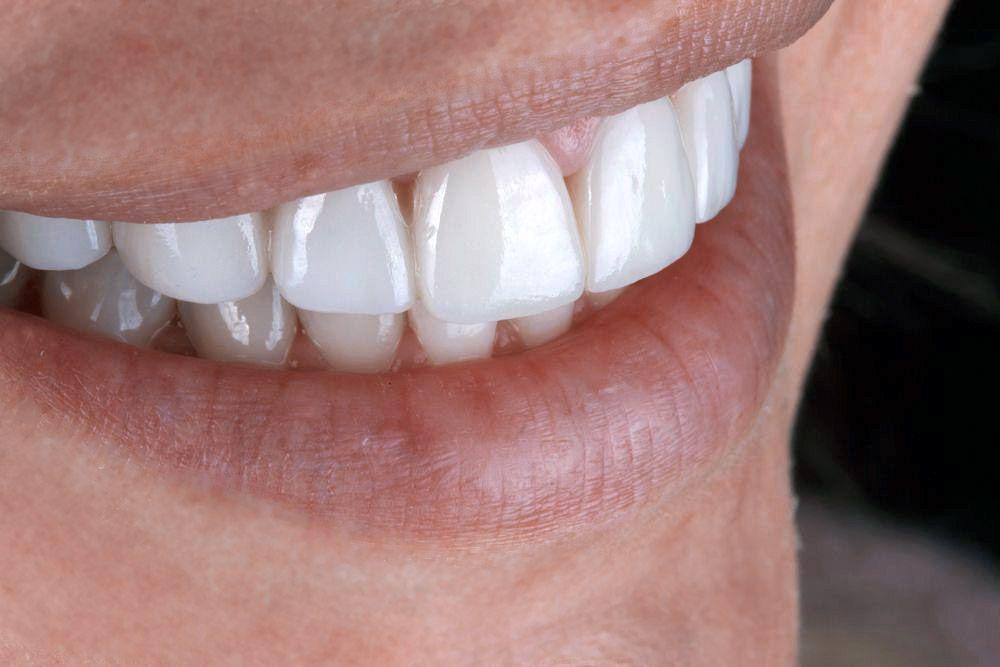 close up of veneers