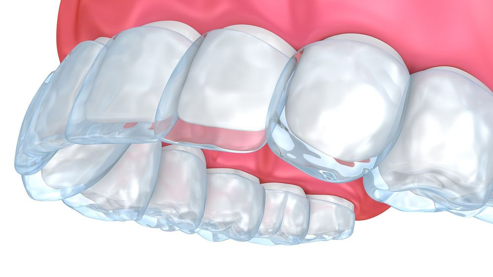 Illustration of Invisalign tray being fitted over top teeth