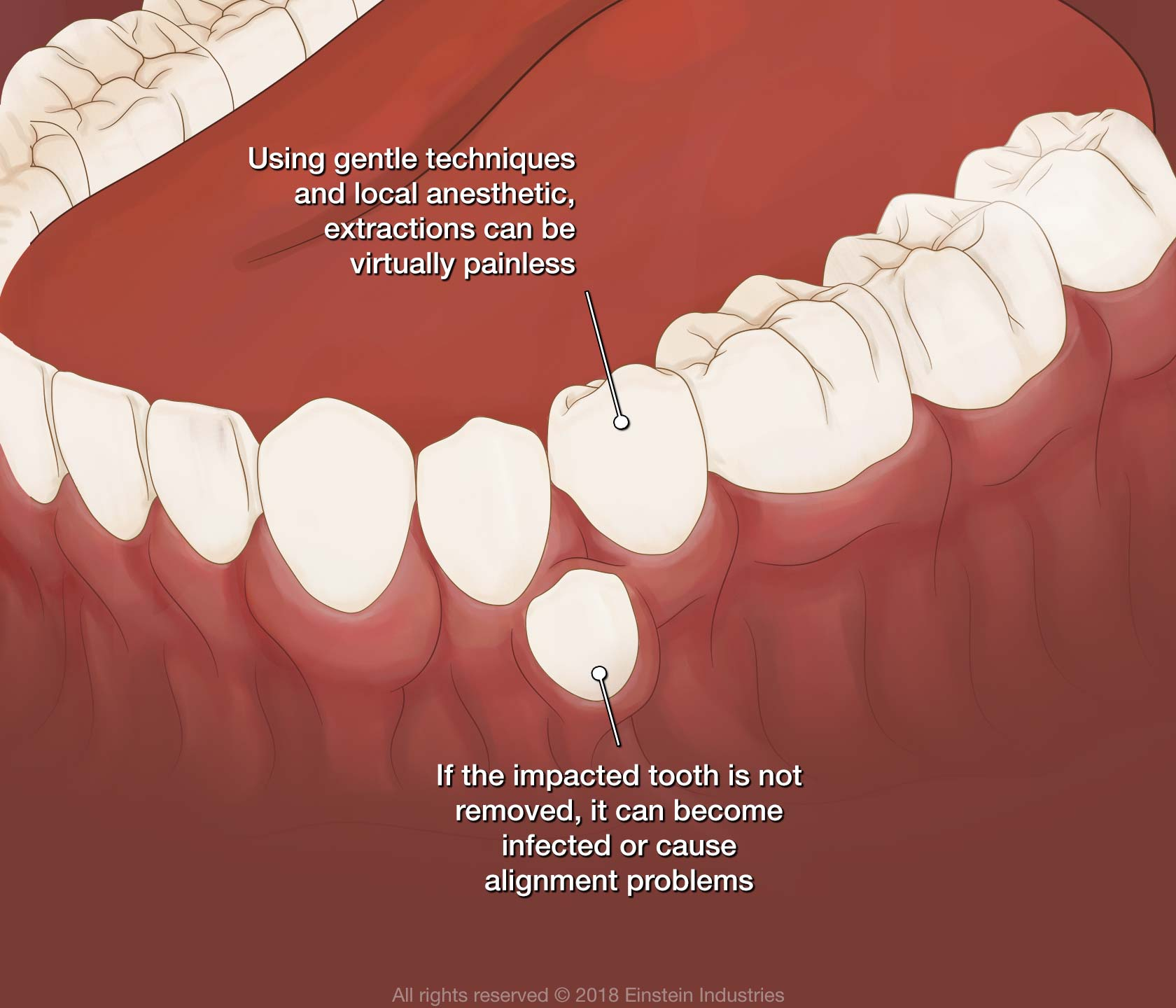 Illustration of causes for tooth extraction
