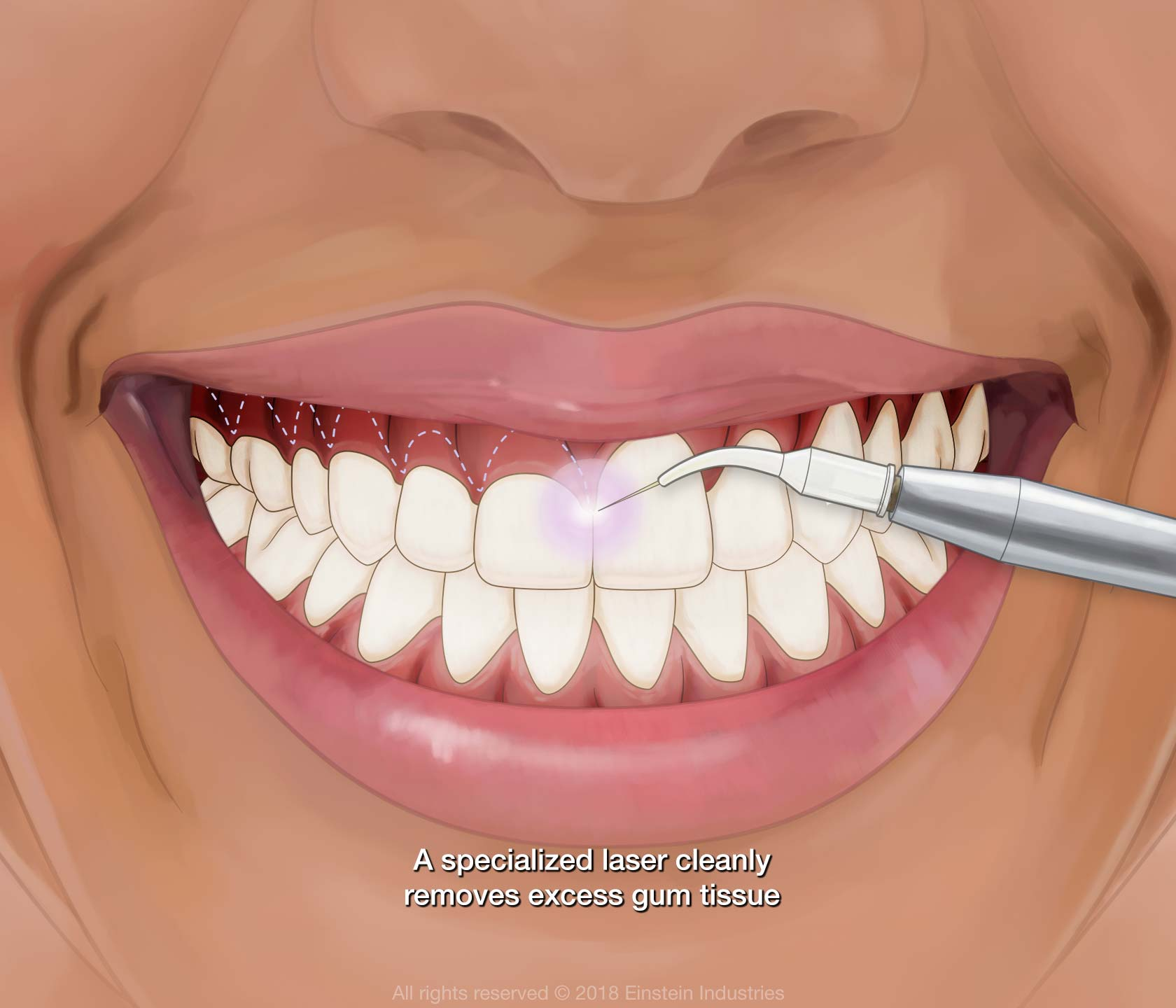 Illustration of laser gum contouring