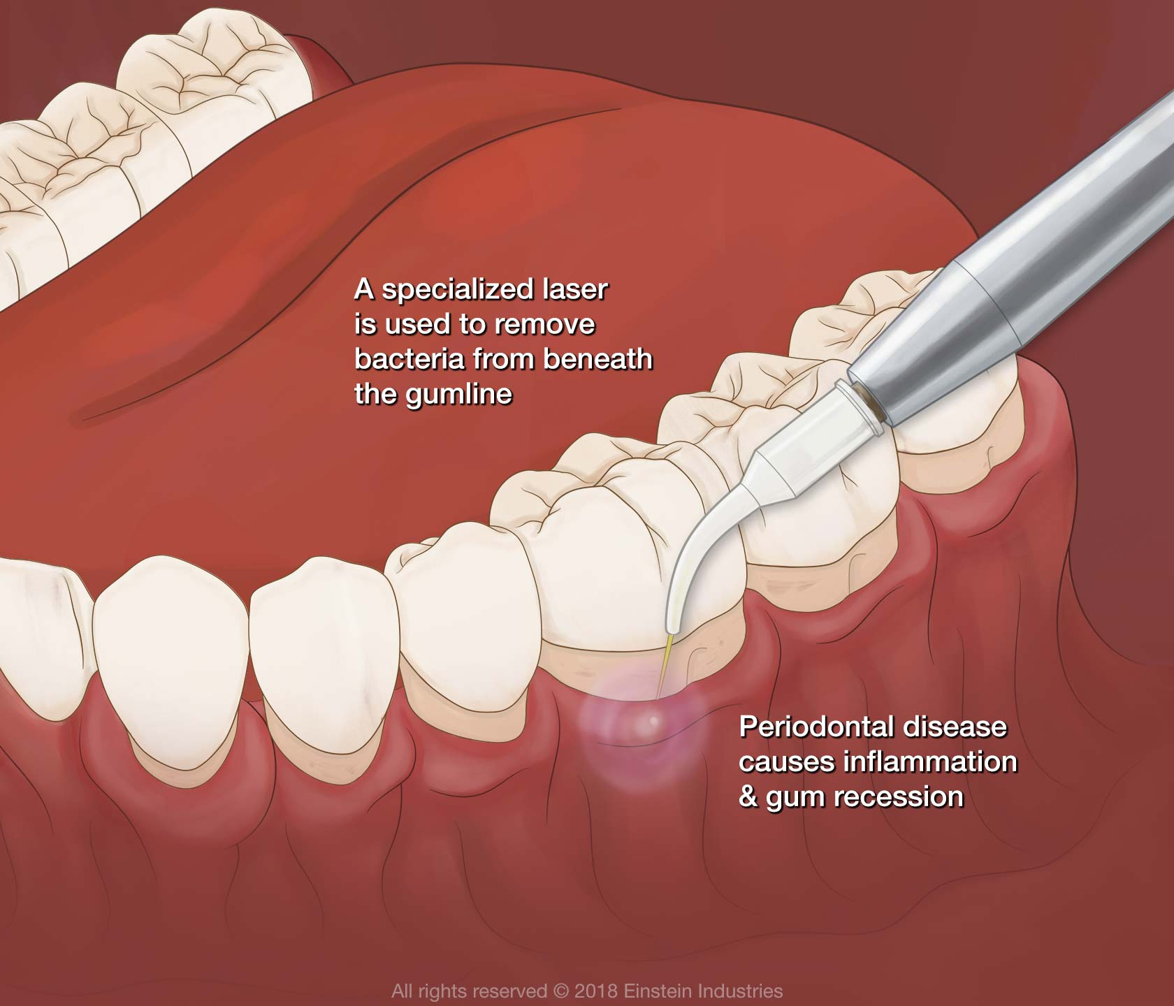 Illustration of laser gum disease treatment