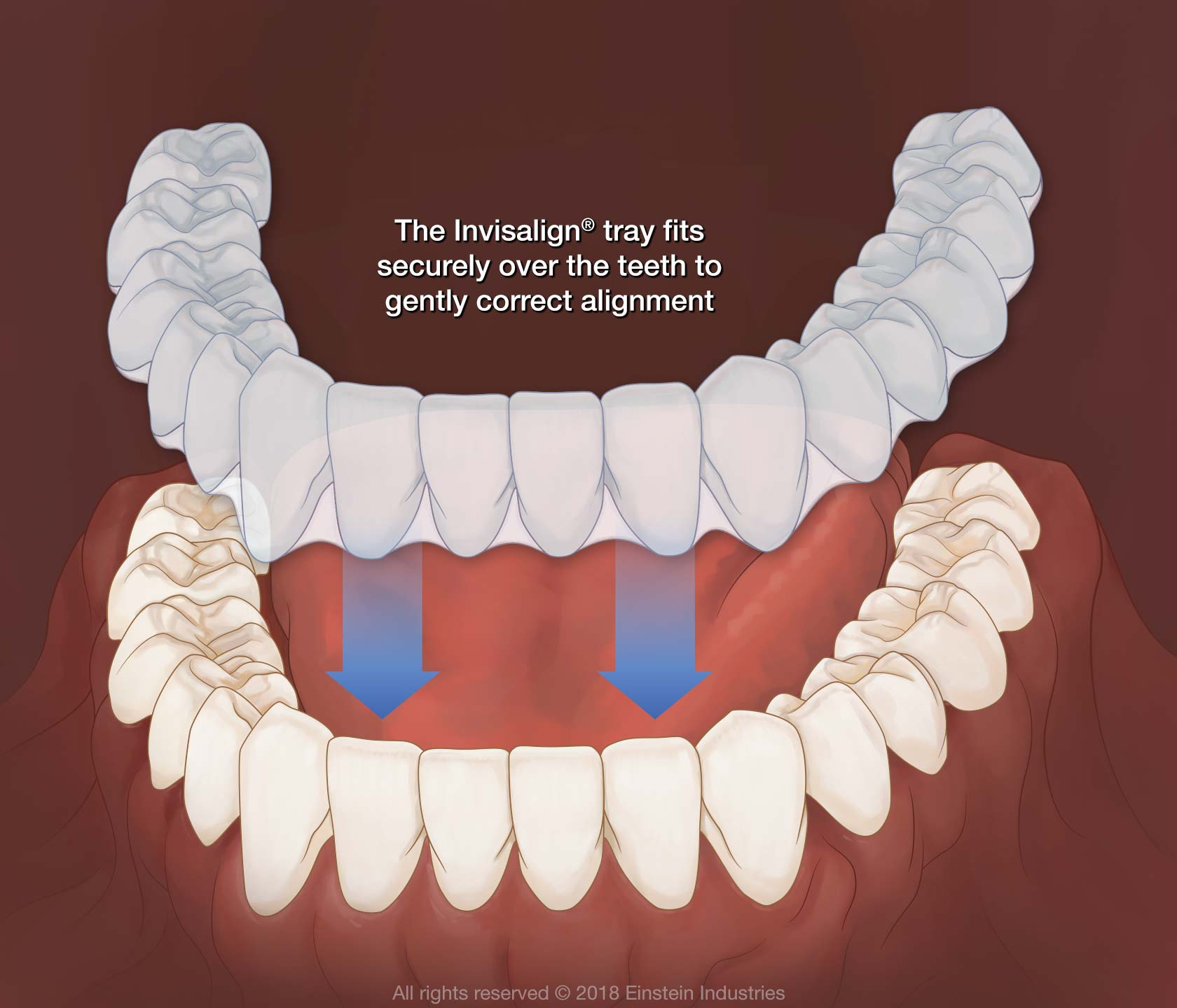 Demonstration of how Invisalign fits over teeth