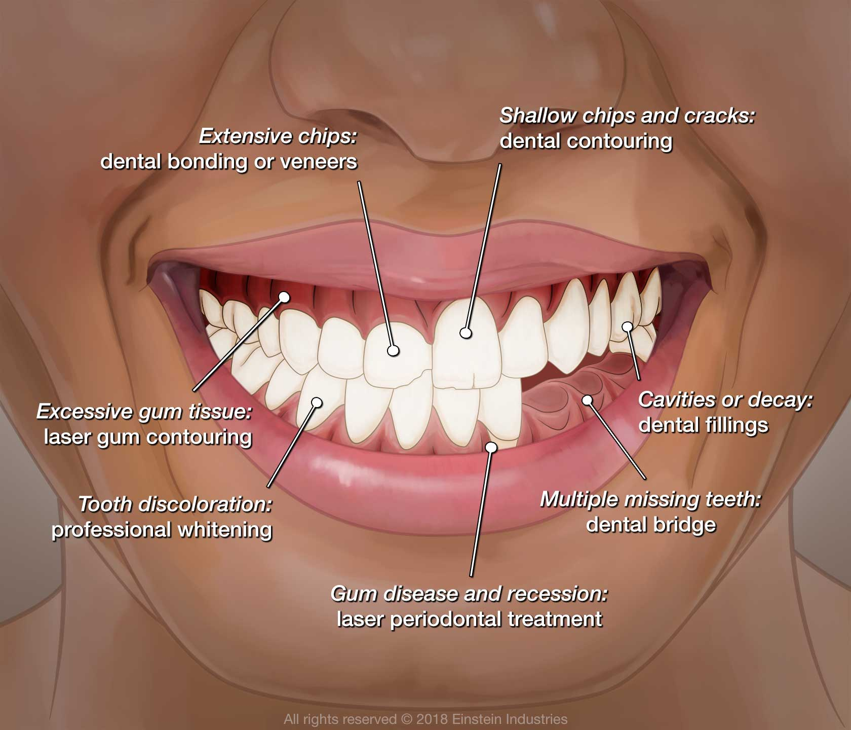 smile makeover illustration