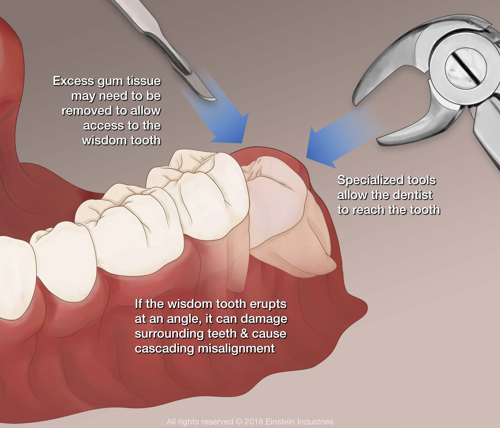 Illustration of wisdom tooth removal