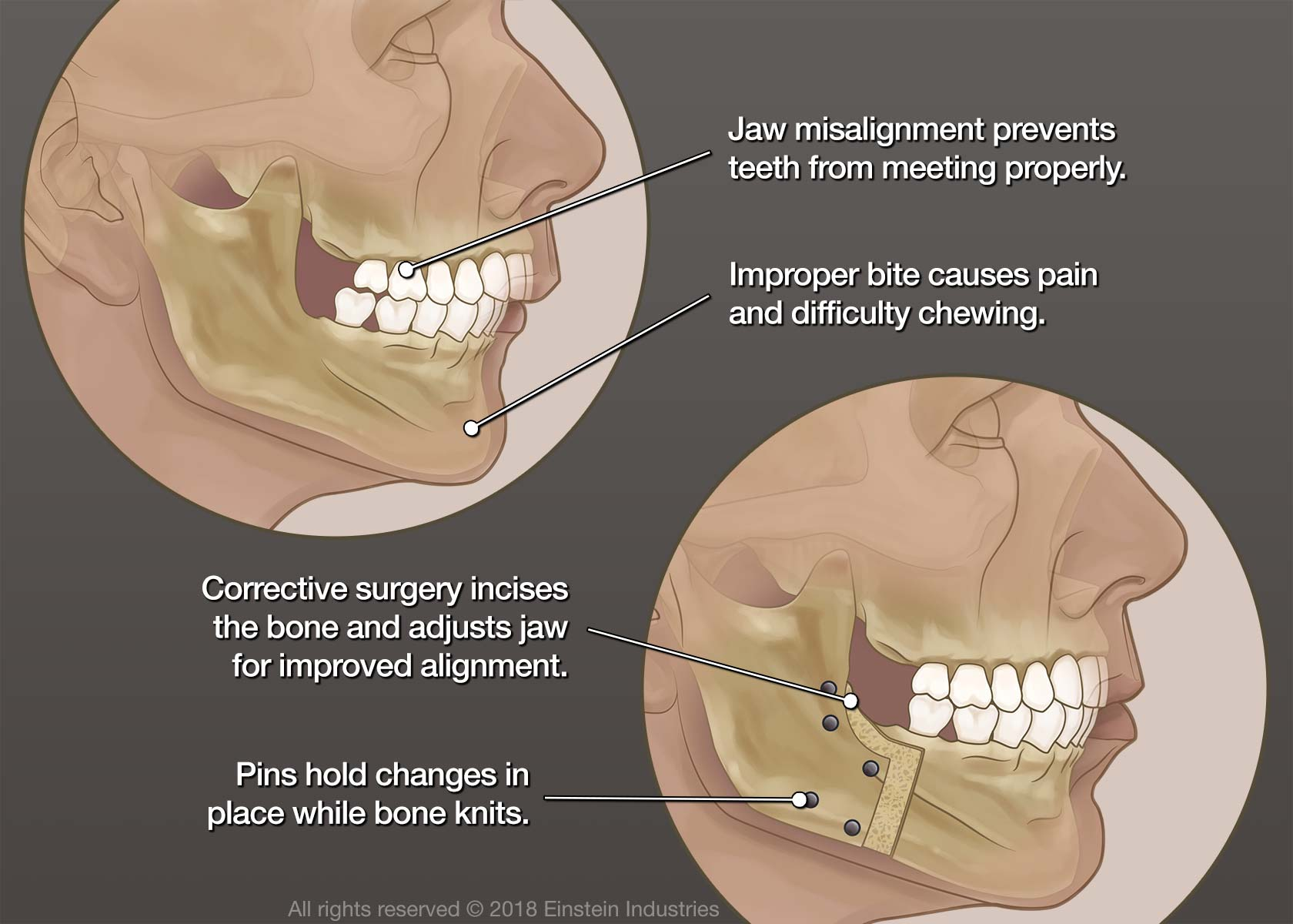 Illustration showing before and after jaw surgery