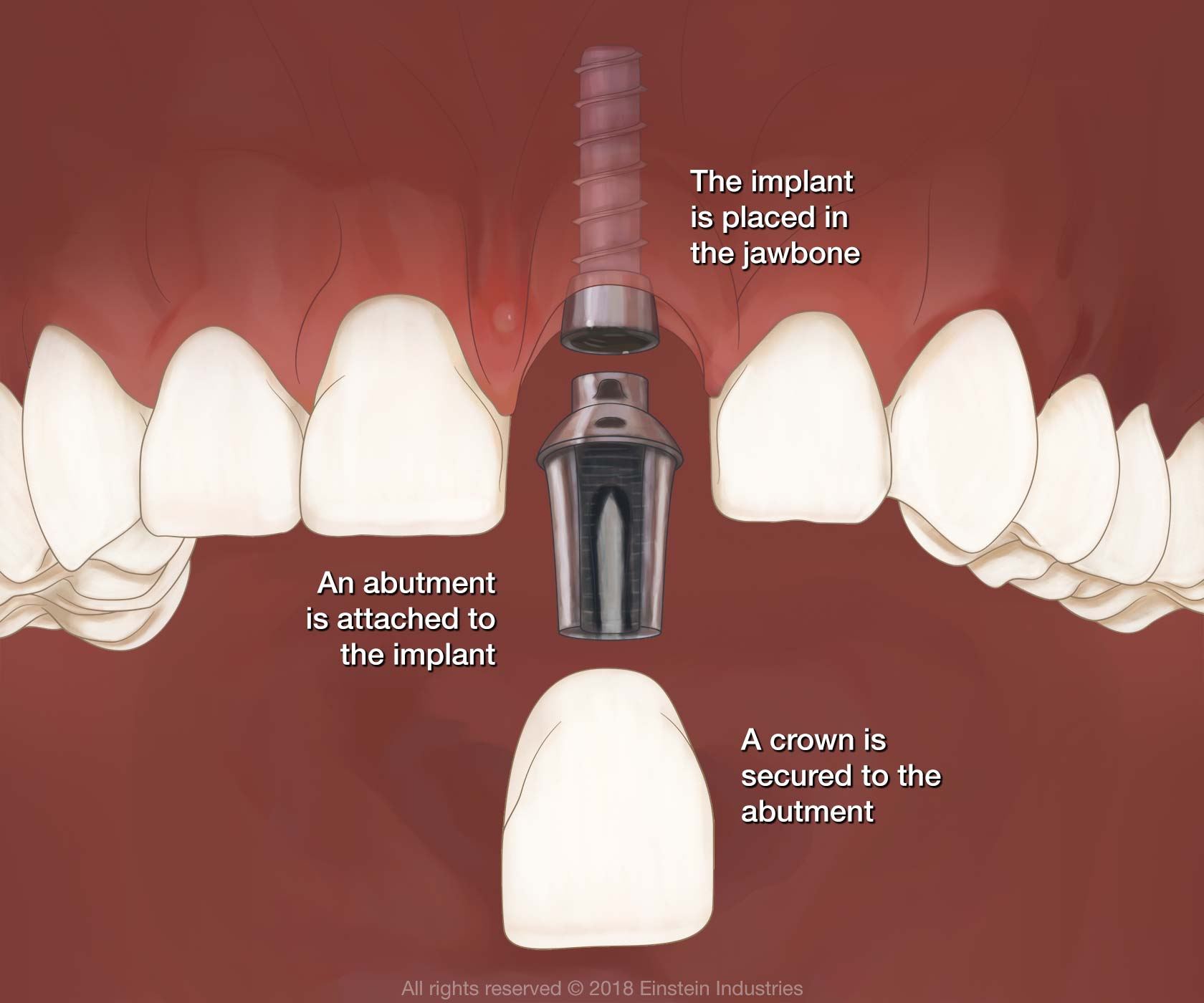 Illustration of jaw and dental implant