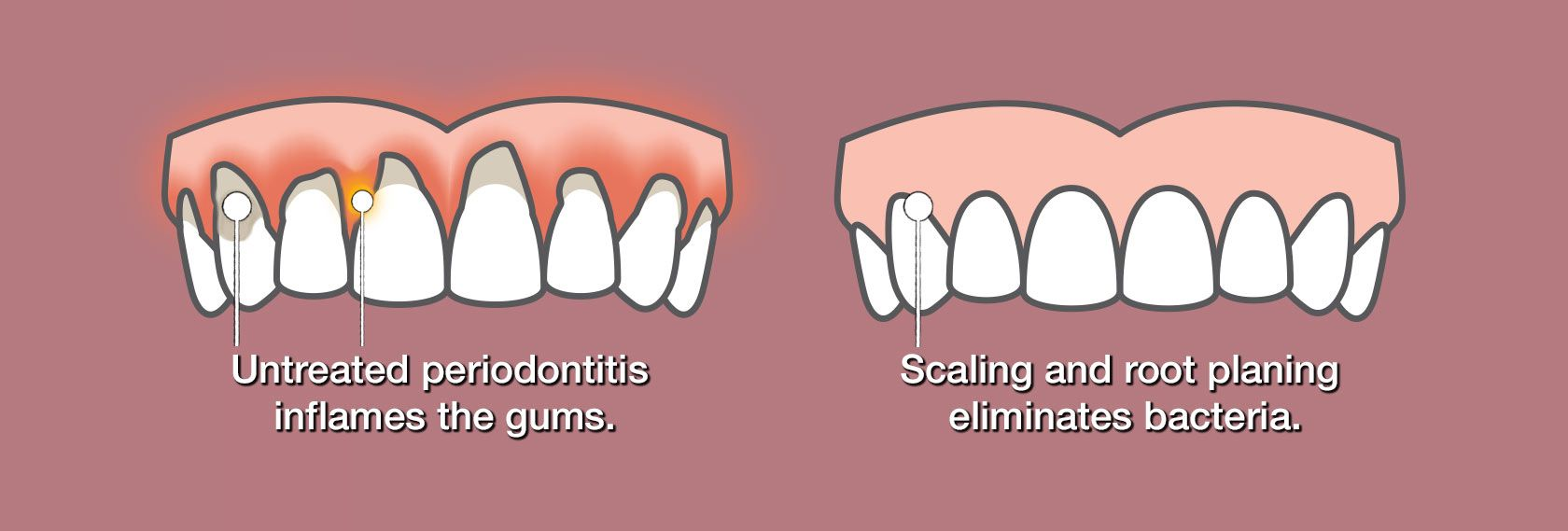 Comparison of gums affected by periodontal disease and healthy gums.