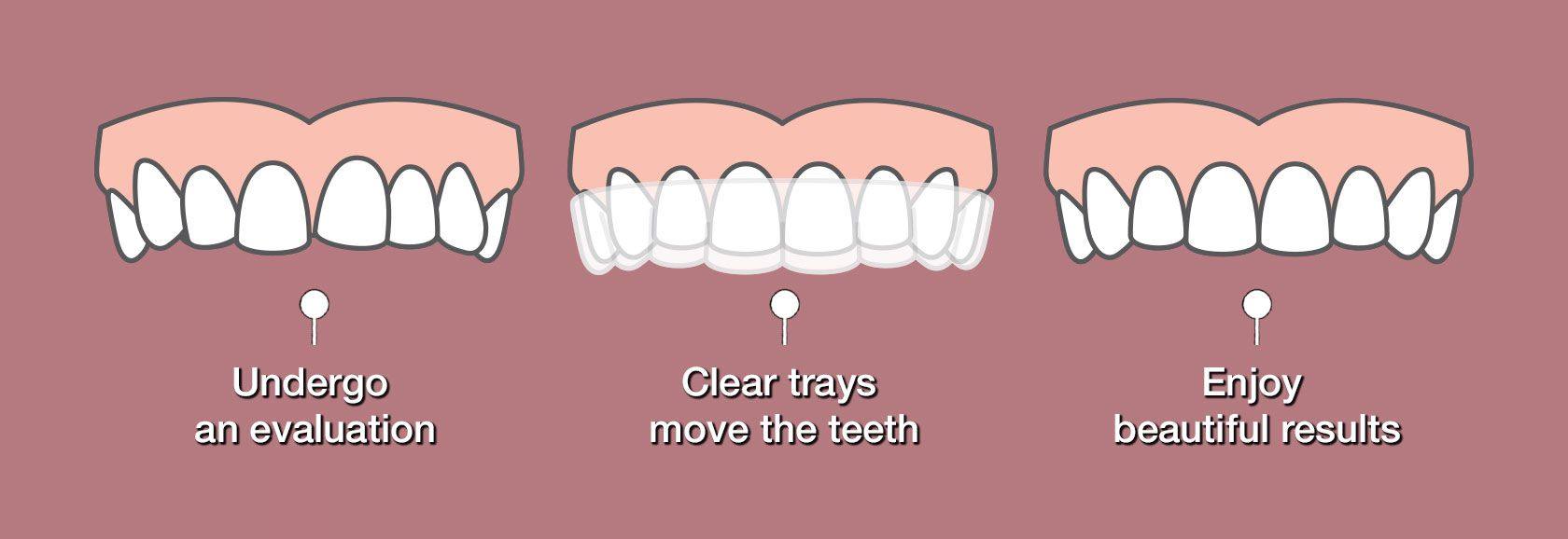 Illustration of stages of Invisalign treatment