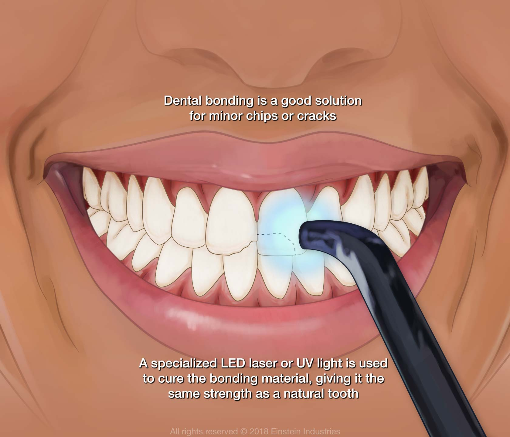 How dental bonding treatment works