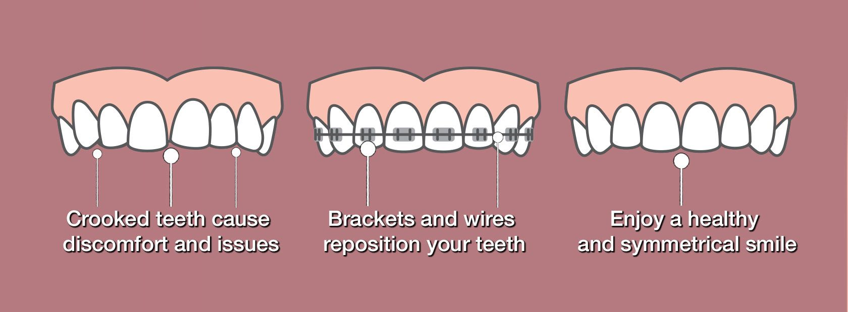 Illustrations of teeth in different stages of orthodontic treatment