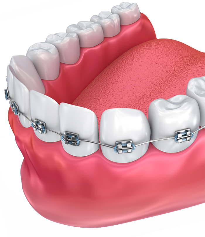 Lower teeth and braces illustration
