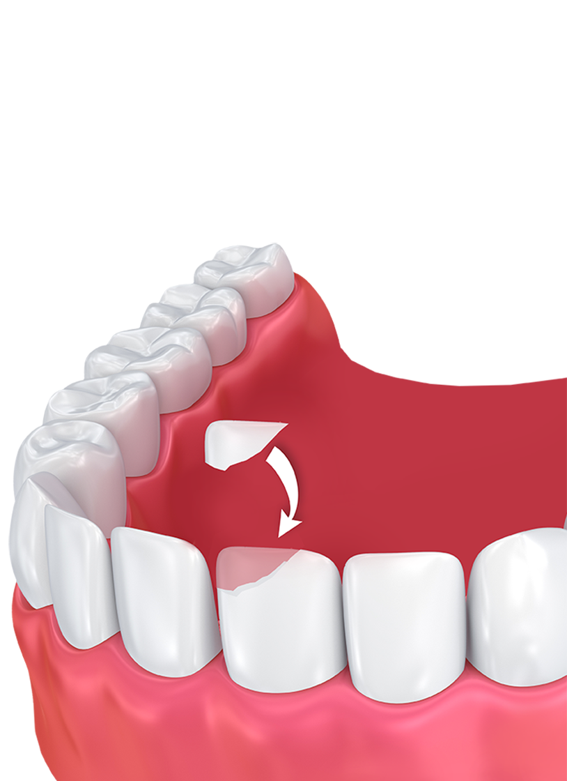 3D rendering of bottom row of teeth, with one chipped tooth receiving dental bonding
