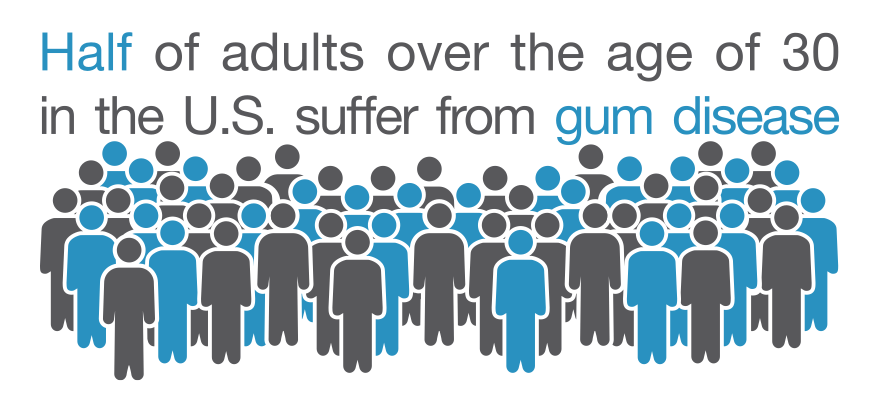 Illustration demonstrating how common gum disease is in the US.